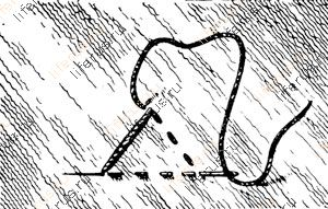 Шов «треугольник»